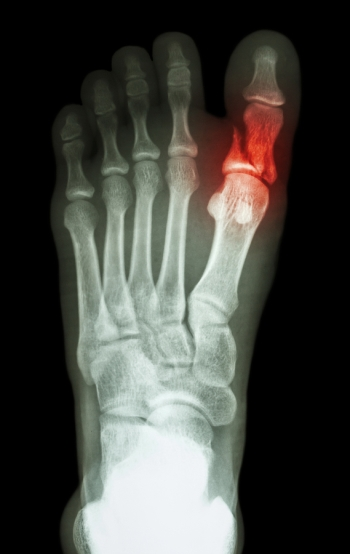 Broken Tow Whitestone - Family Foot Center