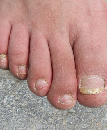 Toenail Falling Off Injury Infection | Healthy HesongBai