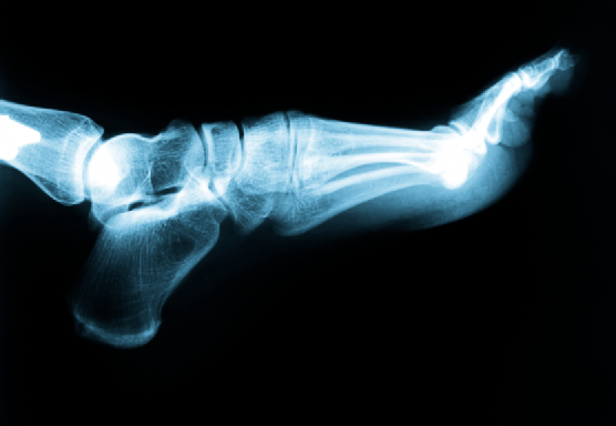 Foot & Ankle X-Ray