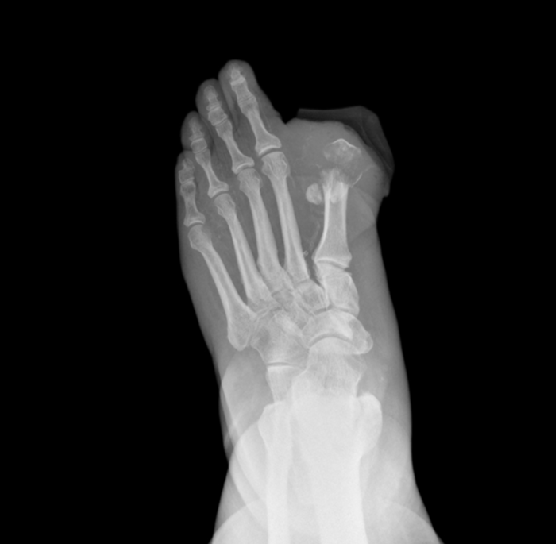 Diabetic foot xray showing an amputated toe and osteomyelitis