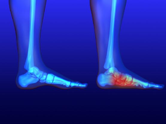 Irregular foot