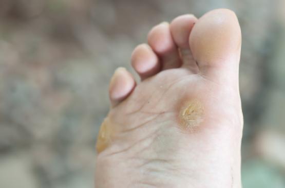 Foot Wart