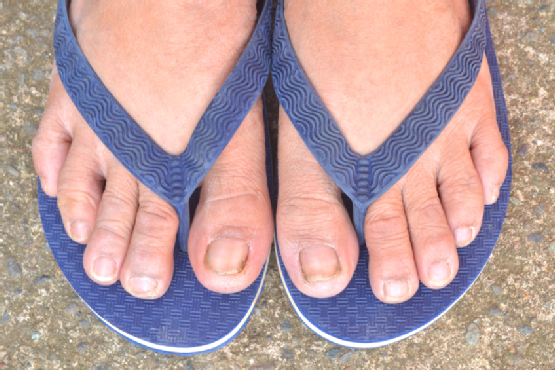 Feet with dirty toe nails