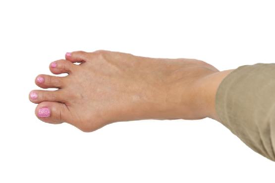 background of  foot deformity called bunion deformity or hallux valgus