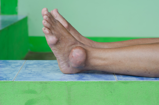 What is Gout and How Does it Affect Your Feet? - Family Foot Center