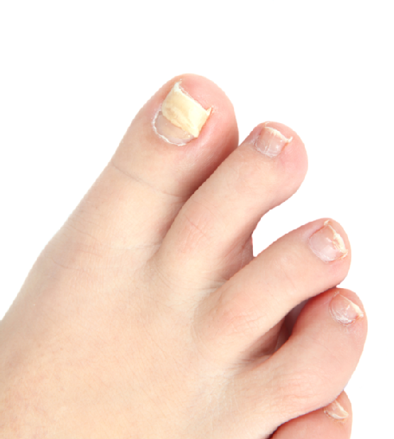 Common Foot Issues - Family Foot Center
