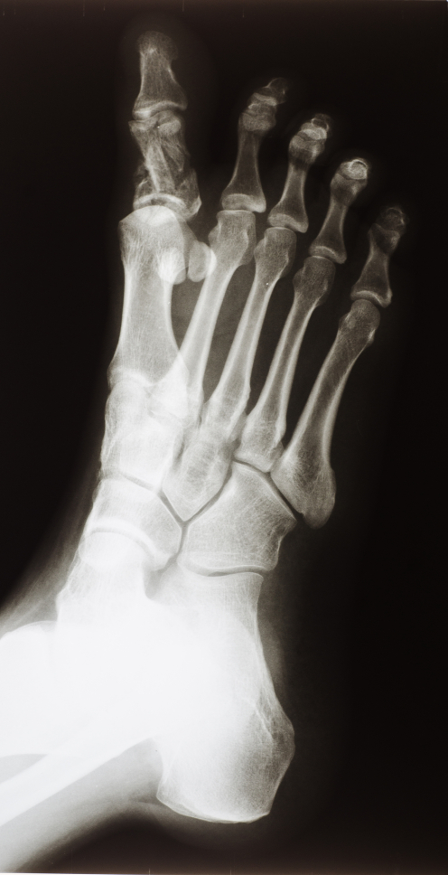 Common Signs of a Toe Fracture - Family Foot Center