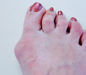 Are bunions painful?